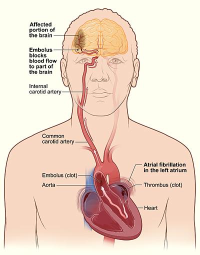 Как лечить сужение сосудов головного мозга в домашних условиях